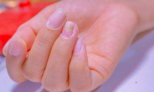 Como devo tomar a medicação do tratamento da síndrome das unhas frágeis?