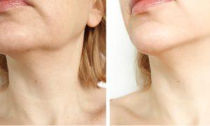 A pele com flacidez pode ser recuperada?