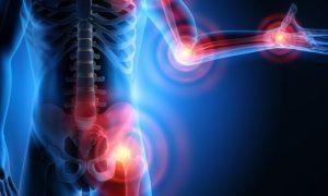 Osteoartrite: Existem nutrientes que auxiliam a síntese de colágeno para as articulações?