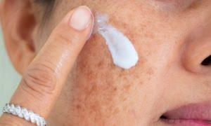 Por que não usar protetor solar pode causar marcas escurecidas na pele?