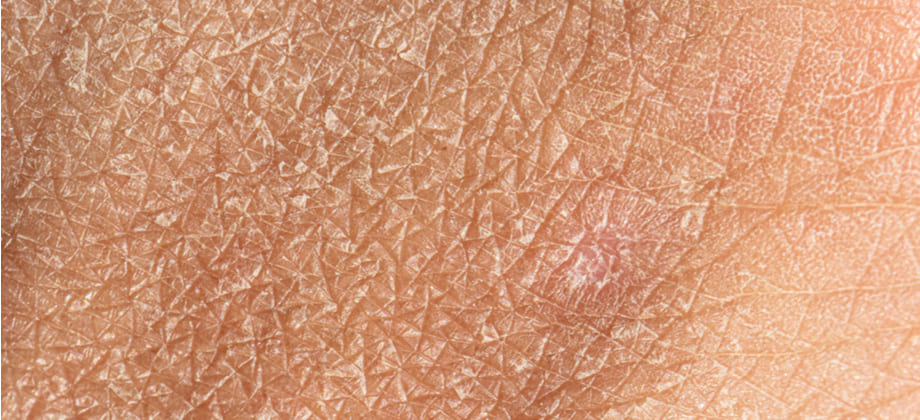 Que fatores fazem a pele ficar ressecada?