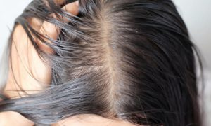 Quem tem o cabelo oleoso tem mais chance de desenvolver caspa?