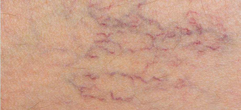 Insuficiência venosa crônica tem relação com varizes? Saiba mais!