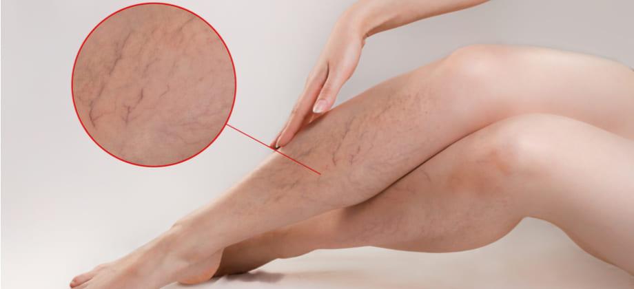 Por que as varizes são mais comuns nas pernas?
