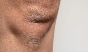 Pele ressecada: por que nos joelhos e cotovelos isso é mais comum?