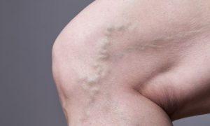 As varizes têm alguma relação com a trombose? Qual?