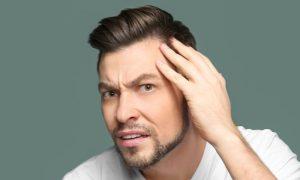Qual é a relação da oleosidade do couro cabeludo com a calvície?