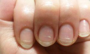 A síndrome das unhas frágeis é influenciada pela genética?