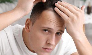 Como iniciar o tratamento para calvície após notar queda dos fios?