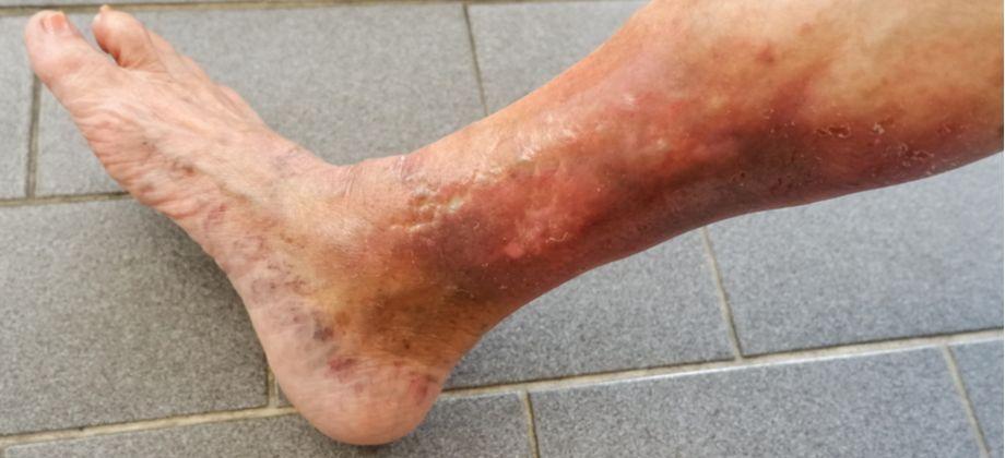 Dermatite ocre: quais as principais características desta complicação das varizes?