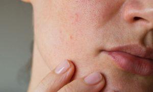 A pele sensível está mais sujeita a doenças e infecções?