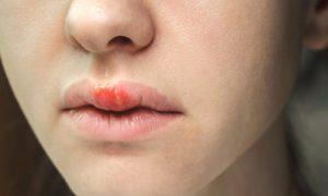 É possível ter herpes e nunca manifestar as feridas? Por que isso acontece?
