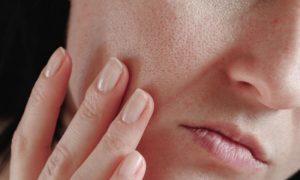 Quem tem poros abertos costuma ter a pele mais oleosa?
