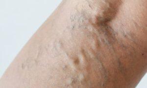 As varizes podem provocar a internação de um paciente?