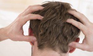 Coceira no couro cabeludo pode ser um sinal de calvície?