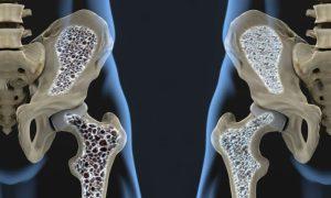 Osteoporose: Existem variações da doença? Quais são?