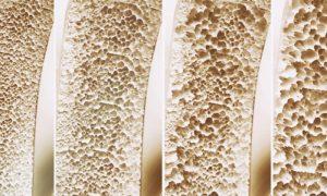 Quais são as diferenças entre a osteopenia e um quadro de osteoporose?