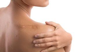 A proteção solar precisa ser intensificada em áreas do corpo com cicatrizes?