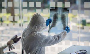 Coronavírus: saiba mais sobre o aspecto de vidro fosco bilateral das tomografias de tórax