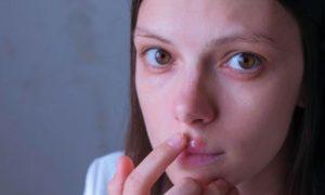 Qual é a relação entre ansiedade, depressão e o herpes?