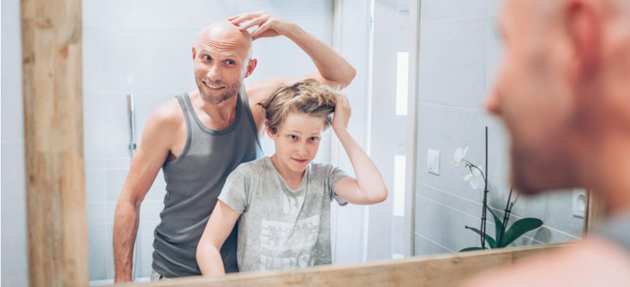 O filho de um pai calvo tem mais chance de desenvolver calvície?