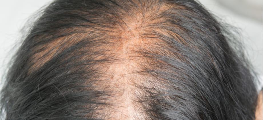 Calvície: O tipo de cabelo pode influenciar o quadro?