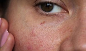Tratamentos caseiros para a pele podem deixá-la mais sensível?
