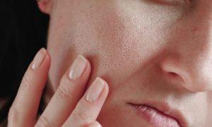 Por que a pele oleosa costuma ter poros mais dilatados?