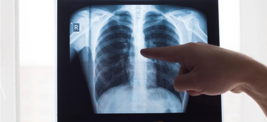 A infecção pelo novo coronavírus pode deixar sequelas nos pulmões?