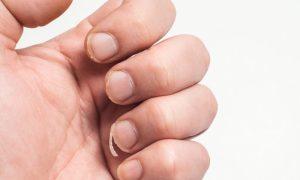 O tratamento contra unhas frágeis apenas fortalece ou também ajuda no crescimento das unhas?