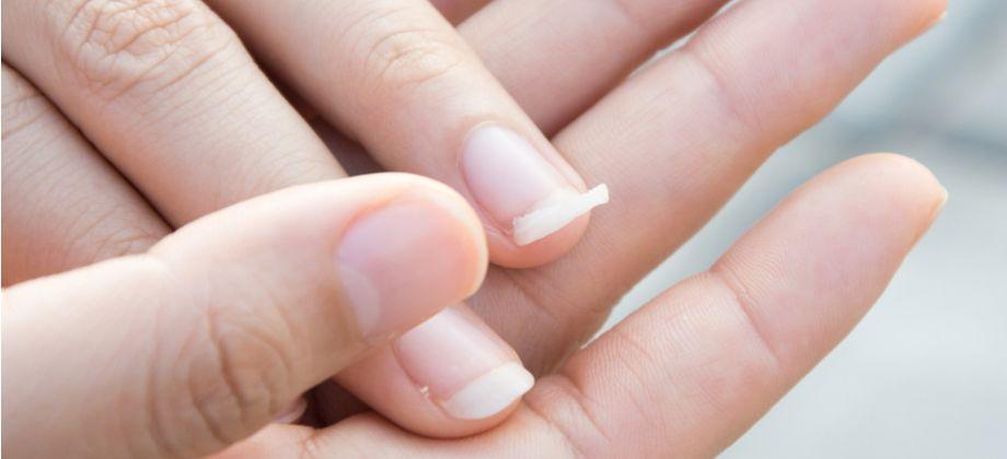 A síndrome das unhas frágeis pode impedir o crescimento de uma unha? Por que?