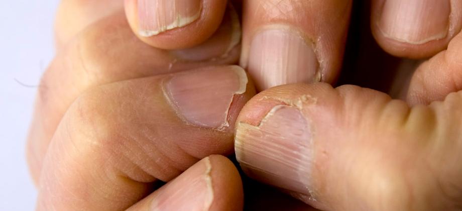Síndrome das unhas frágeis: o que são onicosquizia e onicorrexe?