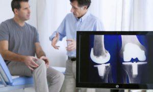 O diagnóstico precoce da osteoartrite facilita o tratamento da doença?