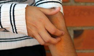 Que hábitos são importantes para controlar a dermatite atópica?