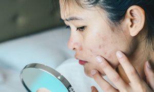 Além do uso de clareadores, que outros cuidados ajudam a controlar as manchas na pele?