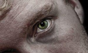 Dormir mal pode piorar as olheiras?