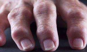 Osteoartrite: a inflamação das articulações pode causar deformações ósseas?