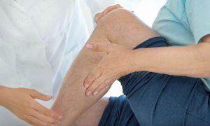 Quais cirurgias podem ser indicadas no tratamento para varizes?