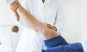 Tratamento de varizes: quando a escleroterapia é indicada?