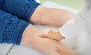 Confira algumas dicas de como dormir após uma cirurgia de varizes