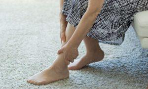 Varizes: Que medidas ajudam a diminuir o inchaço das pernas?