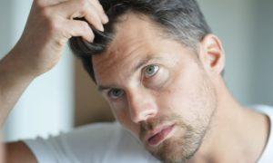 Homens que apresentam entradas ainda jovens fatalmente perderão cabelo em outras áreas no futuro?