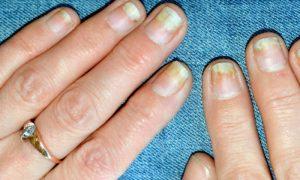 Onicólise: quais as principais características dessa consequência das unhas frágeis?