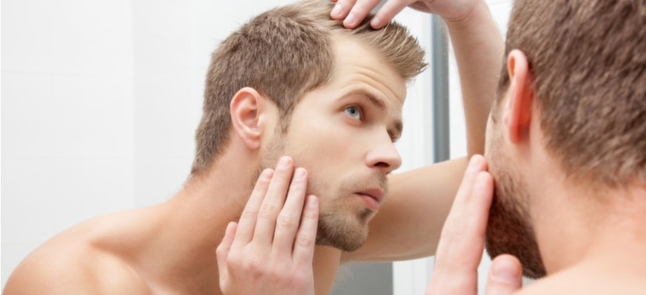 Homens sem história de calvície na família podem se tornar calvos mesmo assim?