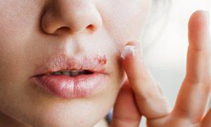 Existem doenças capazes de atrapalhar o tratamento do herpes?