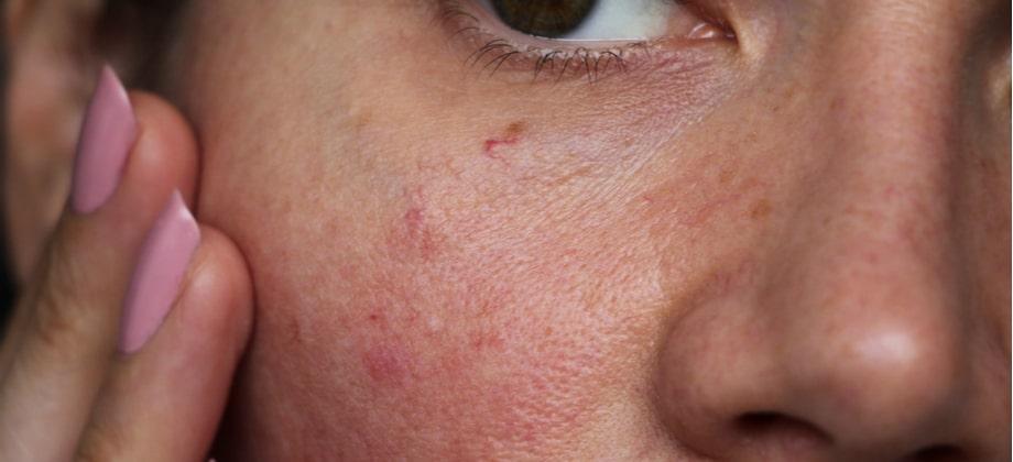 Limpeza de pele sensível: quais são os cuidados necessários durante a higienização?