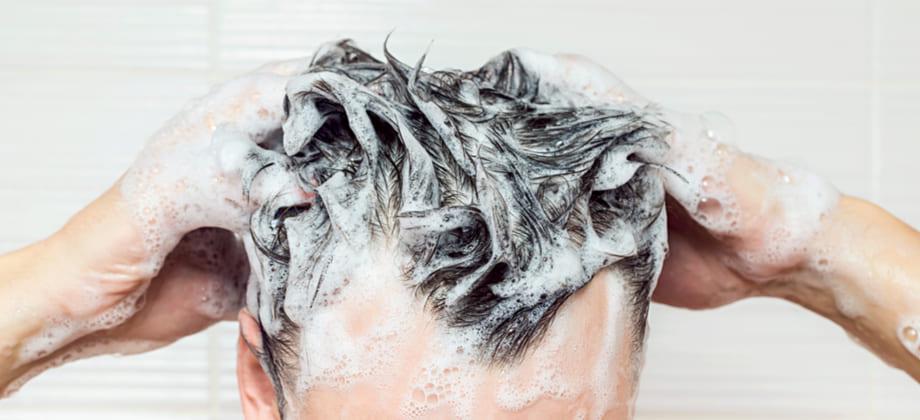 A higiene capilar tem alguma relação com a calvície?