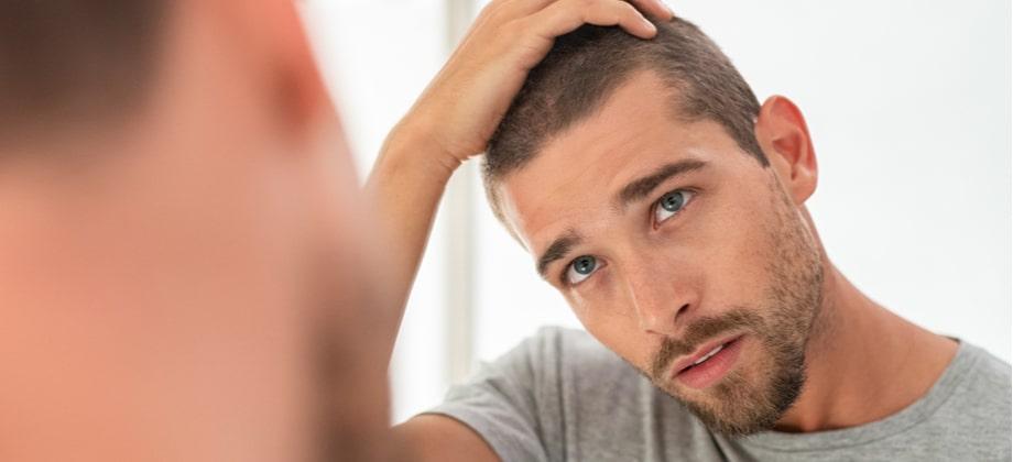 Ter entradas no cabelo significa que você vai ter calvície?