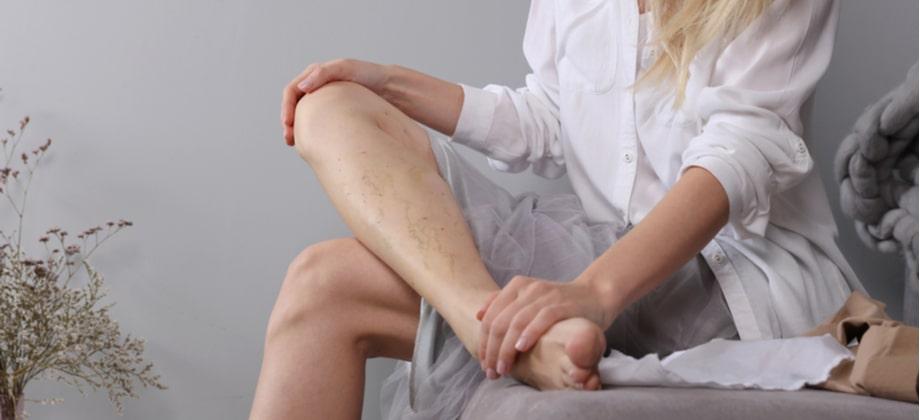 A queimação nas pernas é um sintoma comum de varizes?