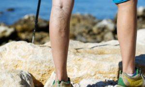 Com a chegada do verão, quais medidas podem ajudar na prevenção das varizes?